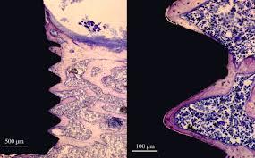 Osteointegracija