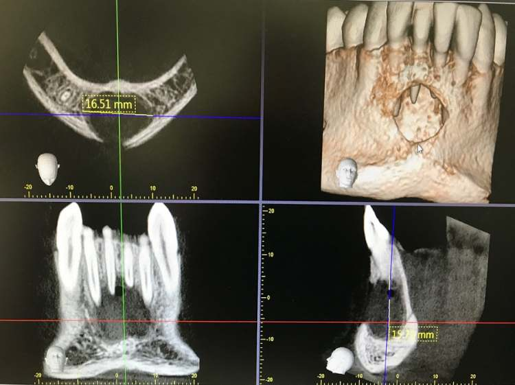 Vnetne zobne ciste
